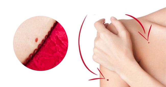 Čo to znamená ak máte na tele červené bodky? angiom hemangiom